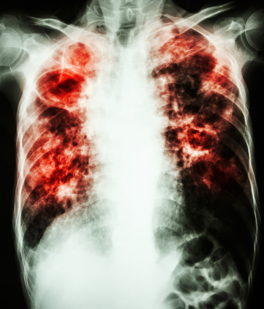 Malignant Pleural Mesothelioma Treated with Radiation-Surgery Approach