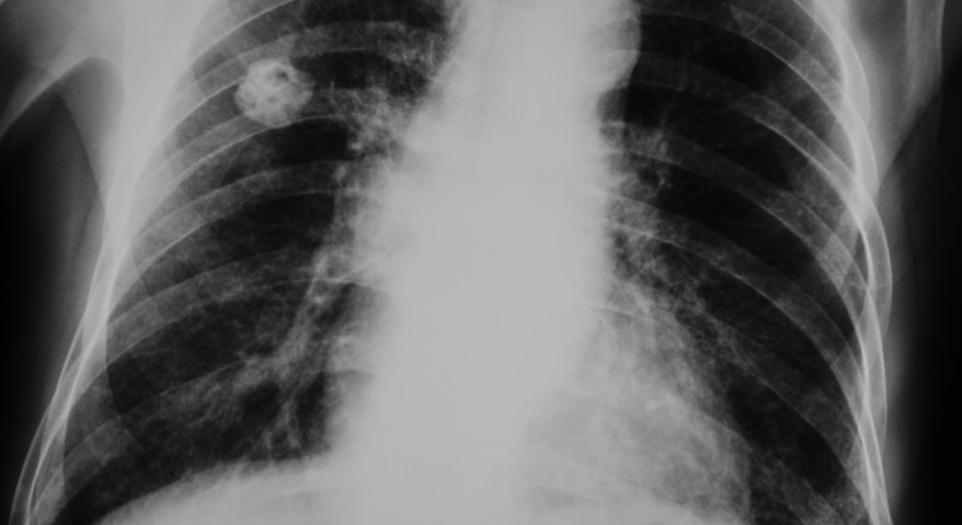Engineered Bacteria Seen in Phase 1 Trial in Malignant Pleural Mesothelioma Patients to Improve Response and Cancer Control
