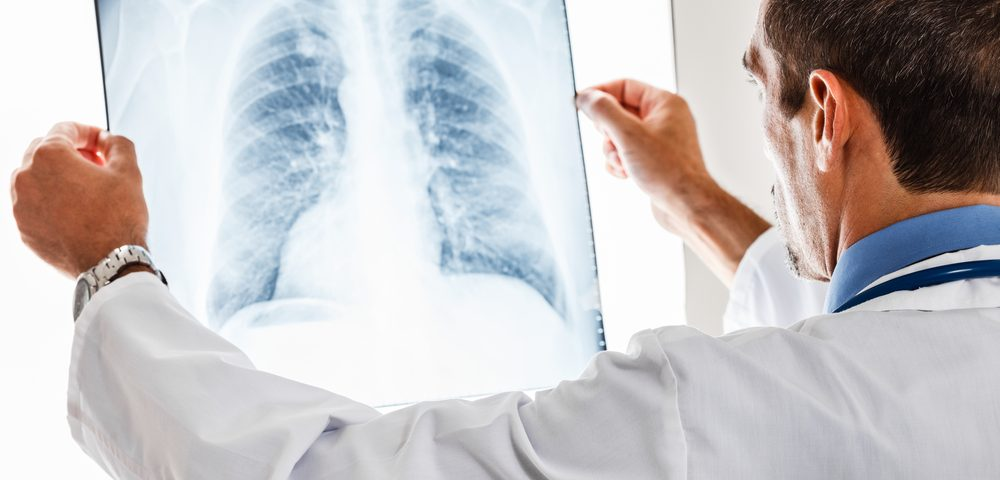 Complete Surgical Removal of Mesothelioma Tumor Can Prolong Survival, Review Says