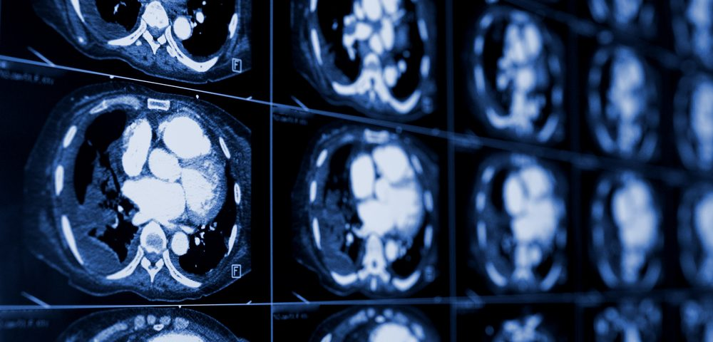PET/CT-scan Parameters Could Help Predict Malignant-pleural-mesothelioma Survival