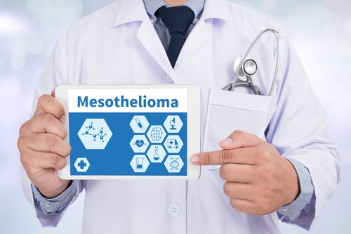 Newly Identified Protein Variation May Make Mesothelioma More Vulnerable to Therapy, Study Reports